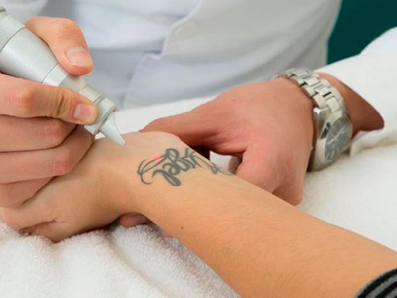 eliminacion-laser-tatuaje